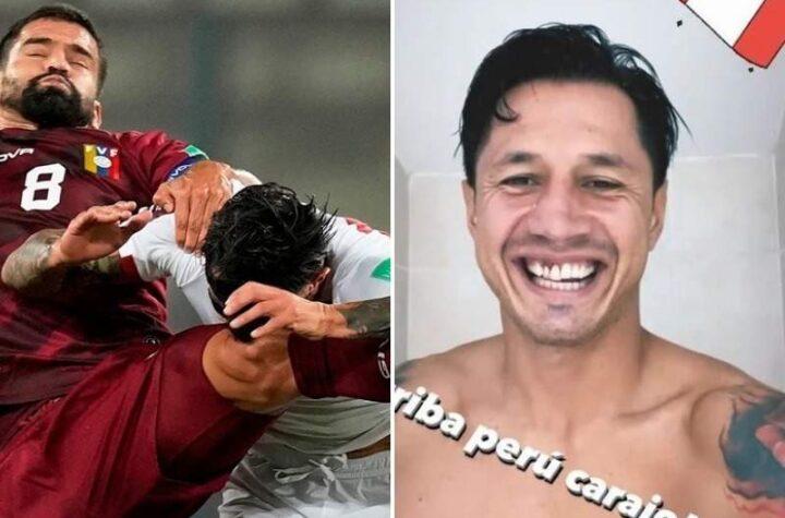 Así le quedaron los dientes a este futbolista peruano tras duro choque con Tomás Rincón (Foto)